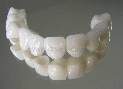 Zirkonyum diş kaplama örenk ve fiyatları