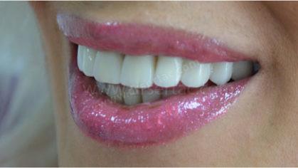Bütün dişlerin kaplanması gerektiğinde zirkonyum mu porselen diş kaplama mı?