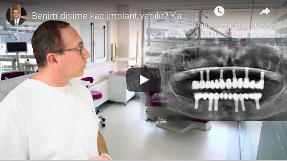 bütün dişlere implant yapımı